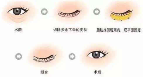 盘点一下抽脂去眼袋费用 效果和维持时间