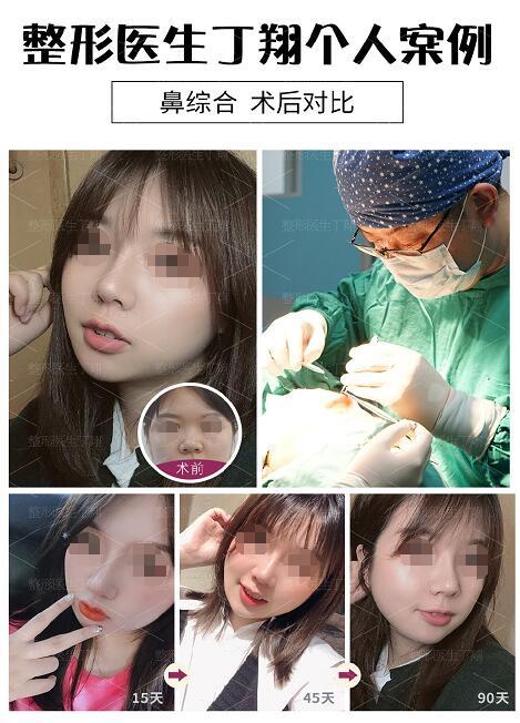 医生榜:2020年长沙鼻修复医生排行榜,这5位医生谁能稳居首位
