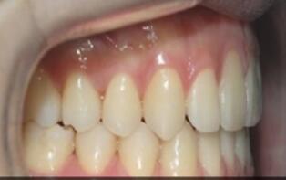 牙齿矫正案例:一个月后展示出自信的笑容