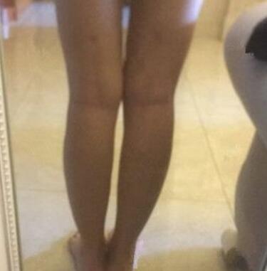 三个月后的大腿吸脂让我勇敢穿出超短裙