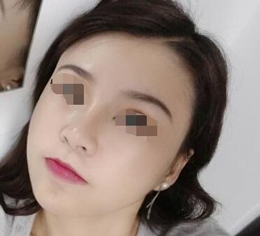 下颌角切除案例:把我的脸型修饰的更加好看了
