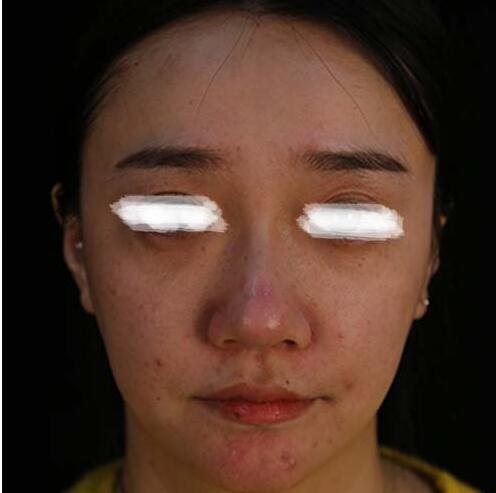 面部吸脂案例:我的美丽不只这一点点