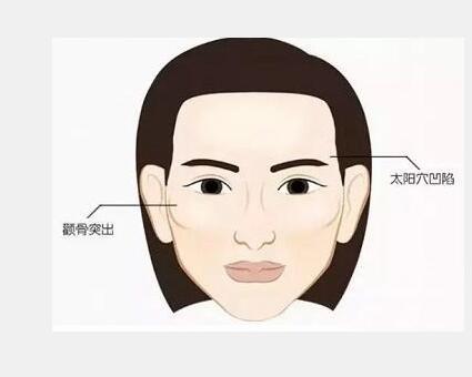 杭州华山高俊明做颧骨内推技术如何
