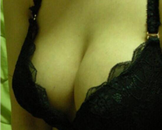 自体脂肪隆胸案例:我现在的胸型是不是很好看