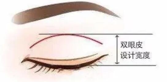 【医美科普】双眼皮做的宽些好还是窄些好