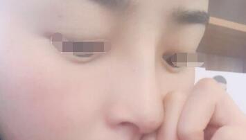 硅胶假体隆鼻案例:求美者的告白信,给自己一个美丽的机会!