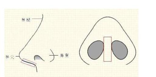 鼻小柱做切口后期可能引发的副作用