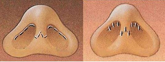 内入路的方式为什么是隆鼻修复求美者的首选