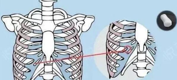 【医美科普】如何辨别自己是下巴短小,还是下巴后缩