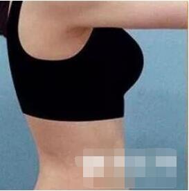 腰部吸脂案例:让我摆脱水桶腰的烦恼