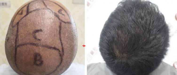 植发六个月后,结果让我大吃一惊