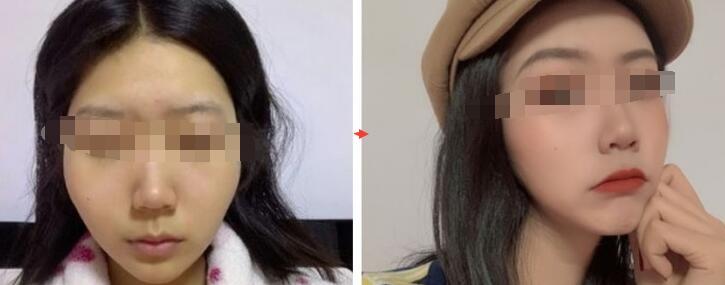 颧骨内推案例:颧骨的颧弓并不是说用瘦脸针就可以变小
