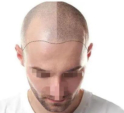 头发影响颜值,今天整理了12个头发种植问题供大家参考