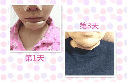 颌面整形案例:垫了下巴,终于变瓜子脸了