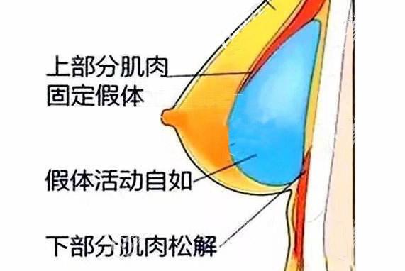 """原来""""双平面""""假体隆胸真的不用按摩就会变软"""