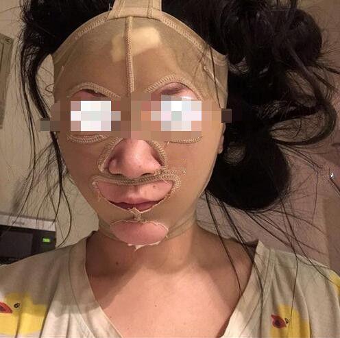 颌面整形案例:终于不再羡慕别人的小尖脸了