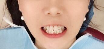 牙齿矫正让我可以拥有好看的牙齿了