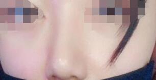 隆鼻术后感想:拥有了更加美丽的面庞才是开心的事情