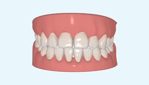 【整形精品】有了隐形牙齿矫正,在别人不知道的时候悄悄变美