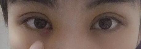 双眼皮术后45天,天真无邪的大眼睛