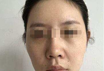 感谢激光祛雀斑把我的脸变得又白又嫩