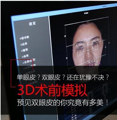 【人气整形】三亚维多利亚整形李善的6维综合美眼技术