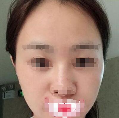 光子嫩肤案例:术后一个月肤色亮了不少