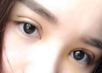 手术一个多月了,双眼皮的形状也越来越自然好看了