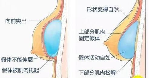 王驰医生擅长项目的突出技术