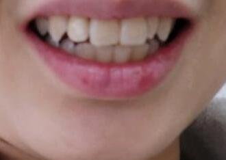 种植牙让我有了新的牙齿,整个人看起来比以前漂亮多了