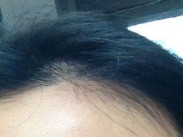 头发种植让我的形象气质爆棚
