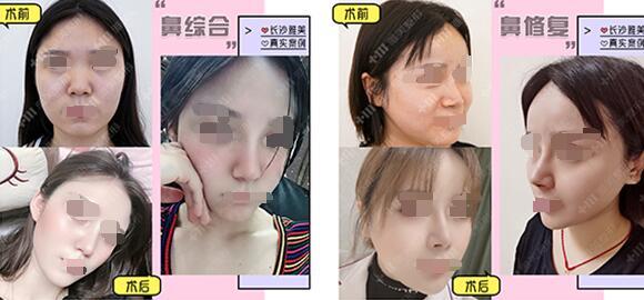 长沙雅美鼻综合79800元,鼻需拯救活动开启