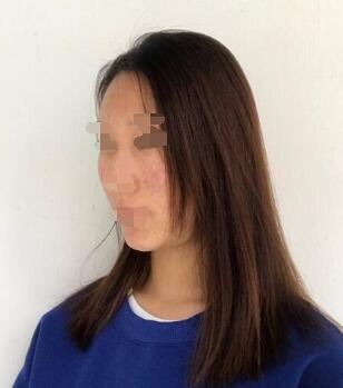 果酸换肤术后两个月,效果很好的嫩肤方法