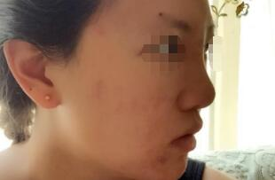 吉林铭医整形侯亮硅胶隆鼻案例 手术费用2800元