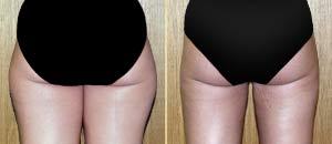 郑州新世纪女子医院臀部吸脂术前后对比照片