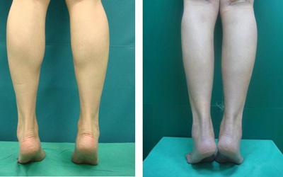 小腿吸脂手术的注意事项