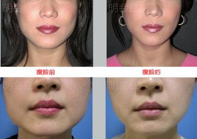 下颌角肥大矫形术的介绍