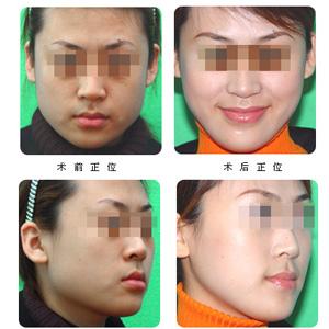 下颌角整形术是怎么做的呢?