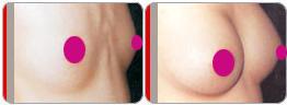 假体隆胸术后效果图