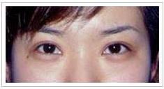 太原开眼角手术后6月效果图
