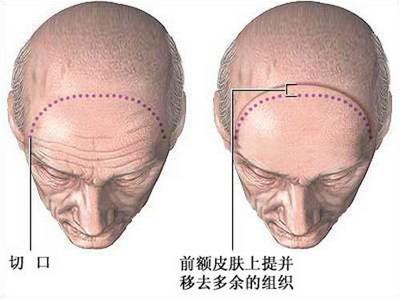 筋膜悬吊除皱术祛除额头皱纹