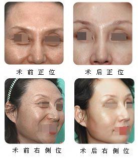 额部除皱手术抚平岁月痕迹