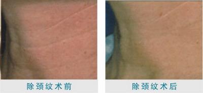 颈部除皱术后护理有哪些?