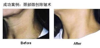 颈部除皱让女人年龄变秘密