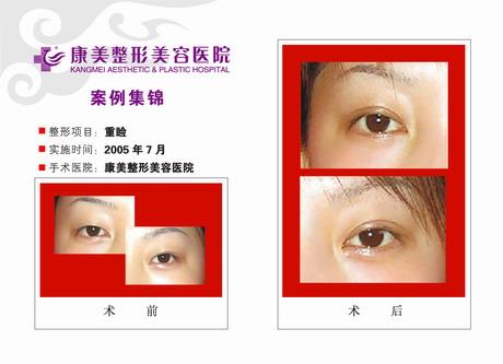 双眼皮手术(重睑术)前后效果对比图