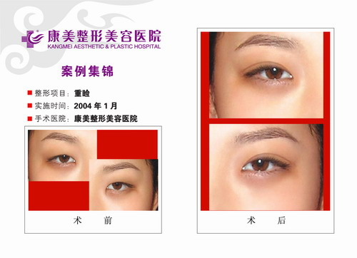 双眼皮手术(重睑术)前后效果对比图2