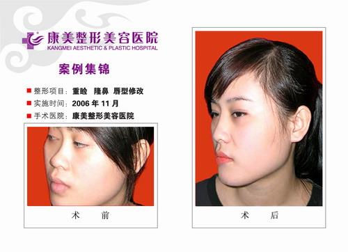 重睑,隆鼻,唇形修改前后效果对比图