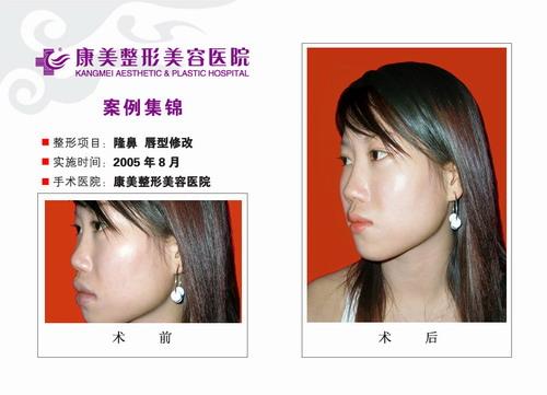 南京康美医疗整形美容隆鼻,唇型修改前后效果对比图