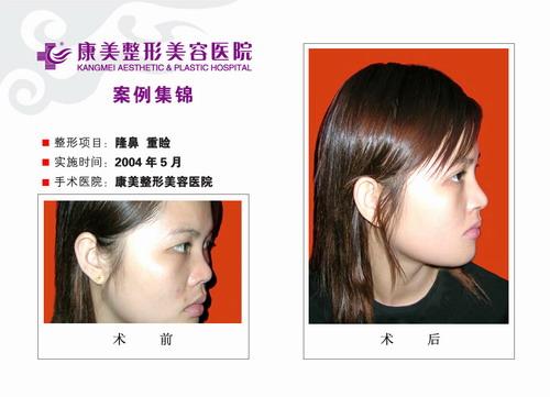 隆鼻手术前后效果对比图