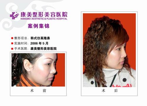 隆鼻手术前后效果对比图2